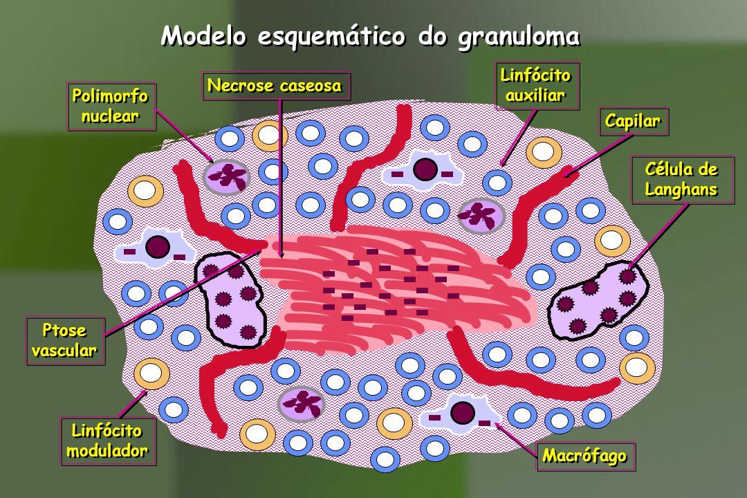 Modelo esquemático do granuloma Necrose caseosa Capilar Ptose vascular Ptose vascular Macrófago Célula de Langhans Célula de Langhans Linfócito auxili