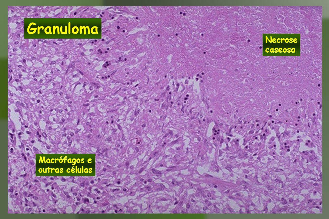 Granuloma Necrose caseosa Macrófagos e outras células