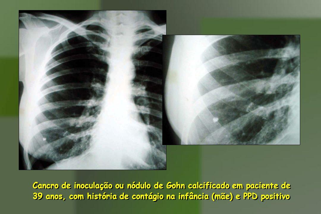 Cancro de inoculação ou nódulo de Gohn calcificado em paciente de 39 anos, com história de contágio na infância (mãe) e PPD positivo Cancro de inocula