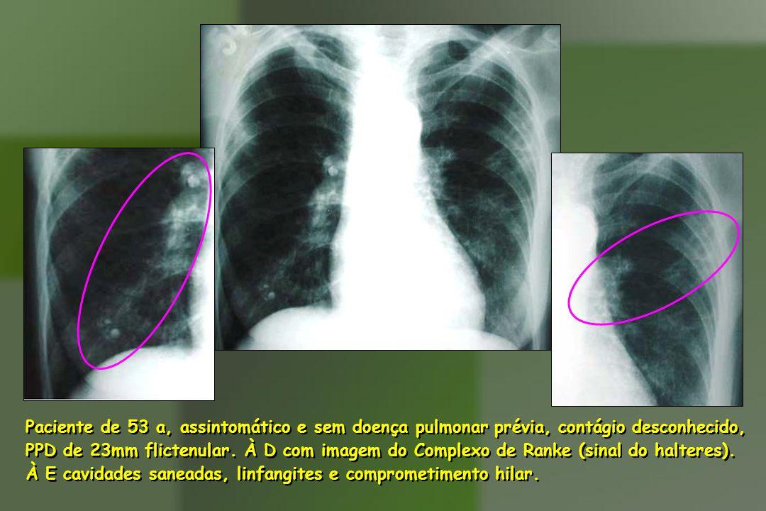 Paciente de 53 a, assintomático e sem doença pulmonar prévia, contágio desconhecido, PPD de 23mm flictenular. À D com imagem do Complexo de Ranke (sin