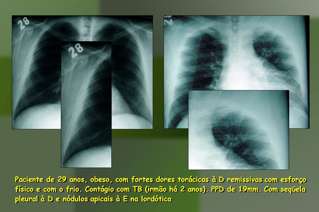 Paciente de 29 anos, obeso, com fortes dores torácicas à D remissivas com esforço físico e com o frio. Contágio com TB (irmão há 2 anos). PPD de 19mm.