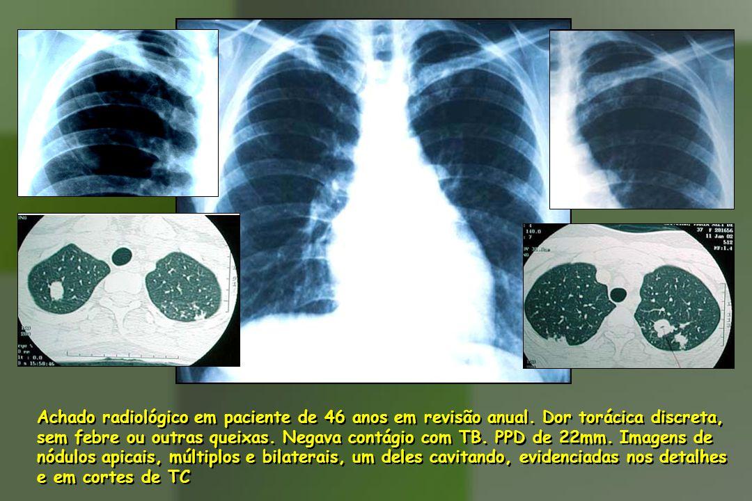 Achado radiológico em paciente de 46 anos em revisão anual. Dor torácica discreta, sem febre ou outras queixas. Negava contágio com TB. PPD de 22mm. I