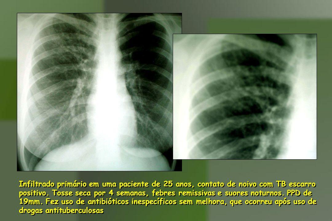 Infiltrado primário em uma paciente de 25 anos, contato de noivo com TB escarro positivo. Tosse seca por 4 semanas, febres remissivas e suores noturno