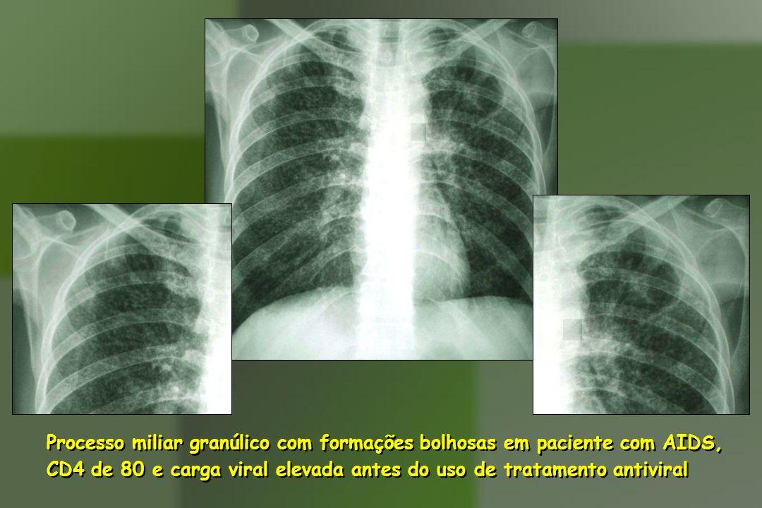Processo miliar granúlico com formações bolhosas em paciente com AIDS, CD4 de 80 e carga viral elevada antes do uso de tratamento antiviral Processo m