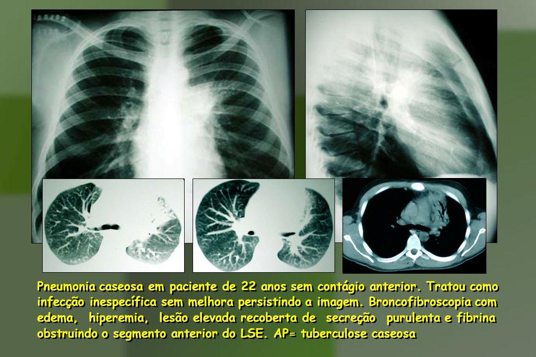 Pneumonia caseosa em paciente de 22 anos sem contágio anterior. Tratou como infecção inespecífica sem melhora persistindo a imagem. Broncofibroscopia