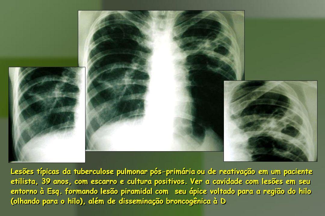 Lesões típicas da tuberculose pulmonar pós-primária ou de reativação em um paciente etilista, 39 anos, com escarro e cultura positivos. Ver a cavidade