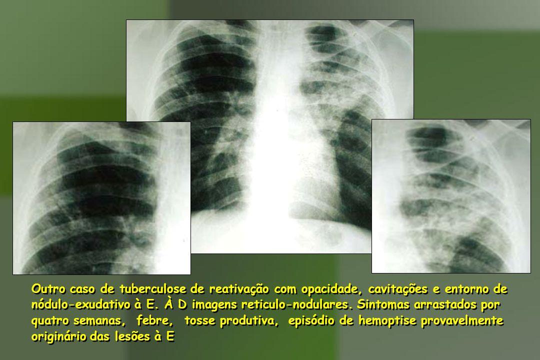 Outro caso de tuberculose de reativação com opacidade, cavitações e entorno de nódulo-exudativo à E. À D imagens reticulo-nodulares. Sintomas arrastad