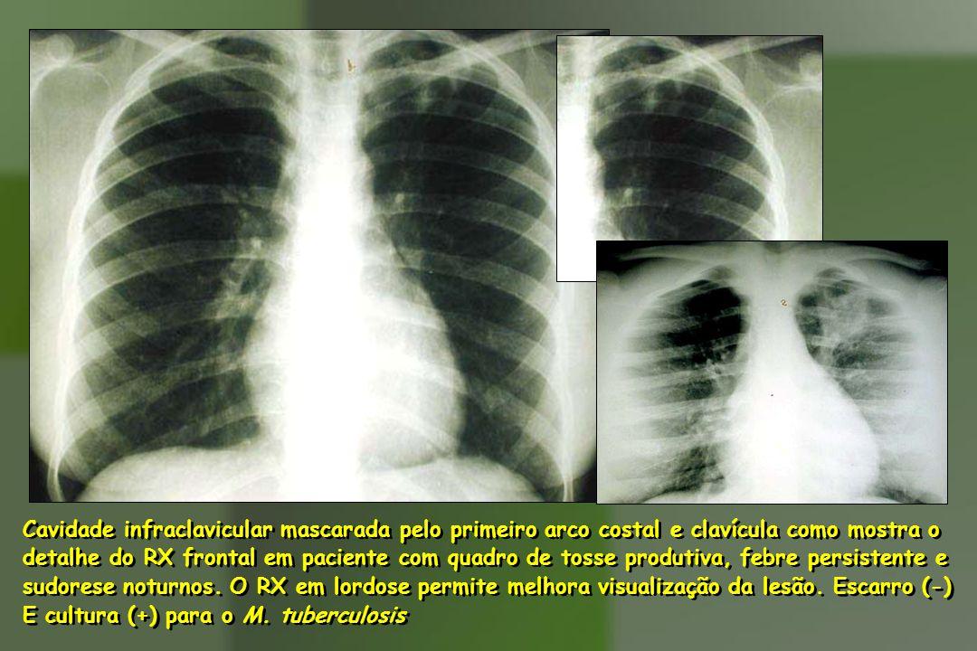Cavidade infraclavicular mascarada pelo primeiro arco costal e clavícula como mostra o detalhe do RX frontal em paciente com quadro de tosse produtiva