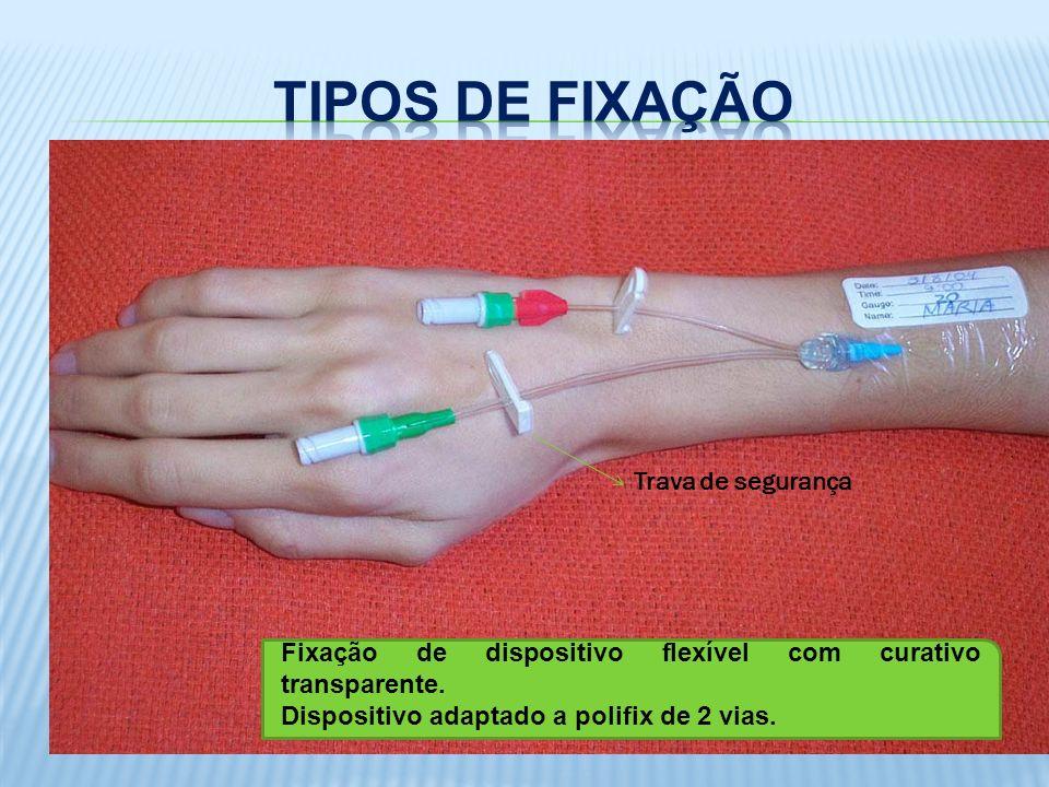 Fixação de dispositivo flexível com curativo transparente. Dispositivo adaptado a polifix de 2 vias. Trava de segurança