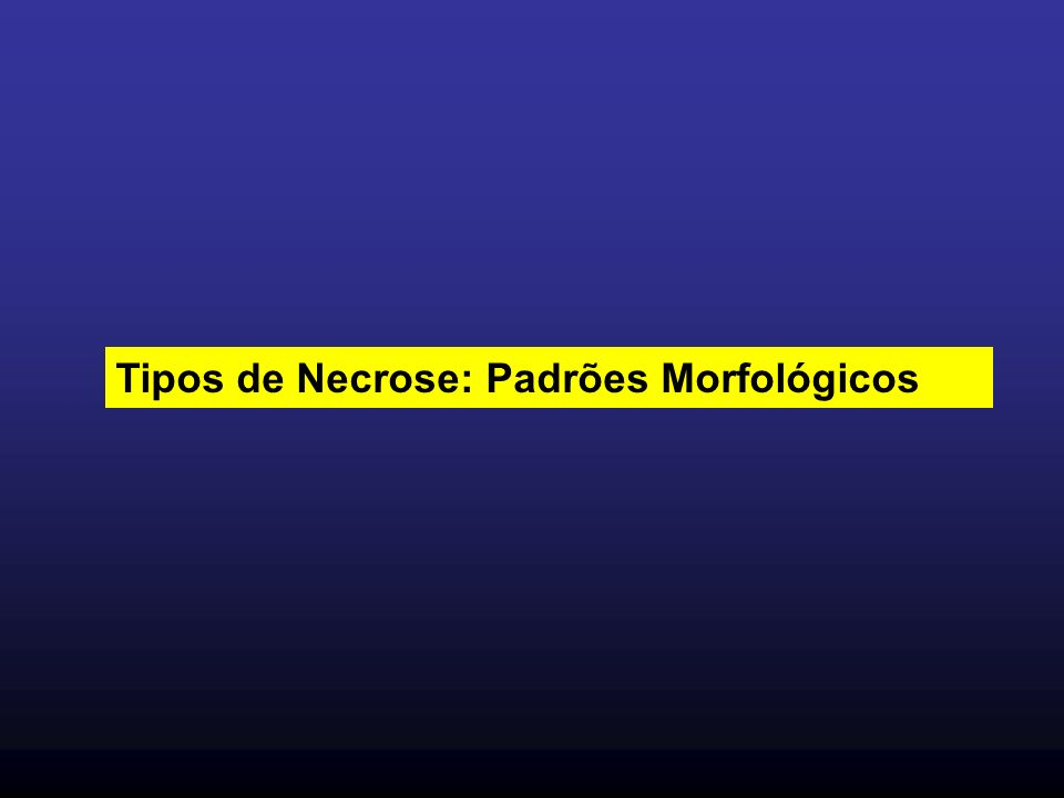 Tipos de Necrose: Padrões Morfológicos