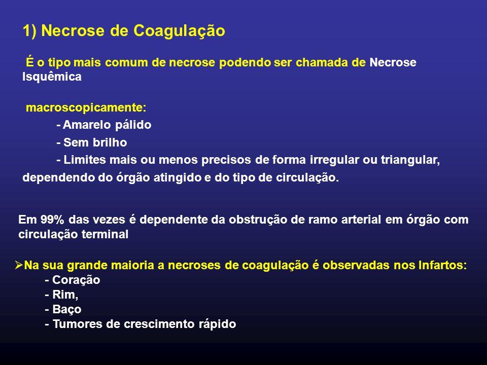 1) Necrose de Coagulação É o tipo mais comum de necrose podendo ser chamada de Necrose Isquêmica macroscopicamente: - Amarelo pálido - Sem brilho - Li