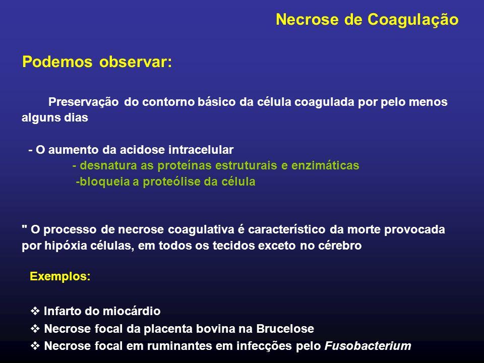 Necrose de Coagulação Podemos observar: Preservação do contorno básico da célula coagulada por pelo menos alguns dias - O aumento da acidose intracelu