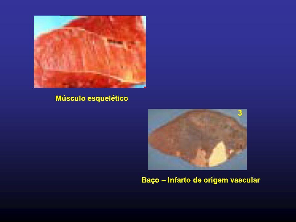 Baço – Infarto de origem vascular Músculo esquelético