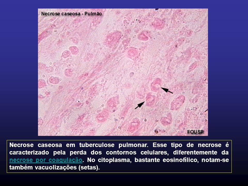 Necrose caseosa em tuberculose pulmonar.