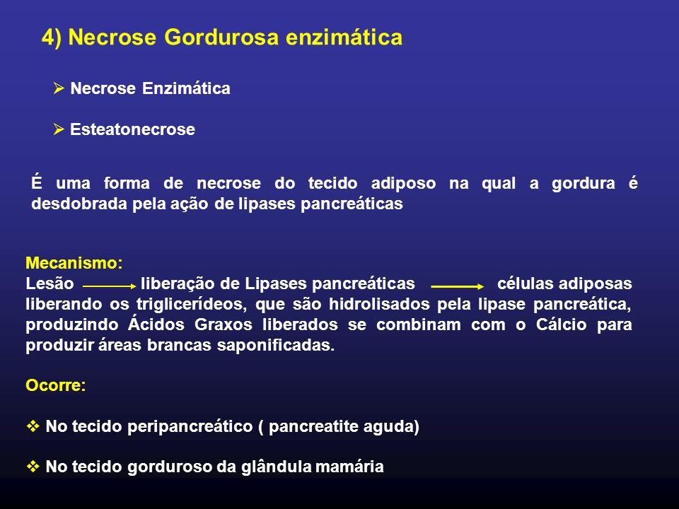 4) Necrose Gordurosa enzimática É uma forma de necrose do tecido adiposo na qual a gordura é desdobrada pela ação de lipases pancreáticas Mecanismo: L