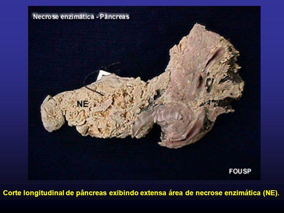 Corte longitudinal de pâncreas exibindo extensa área de necrose enzimática (NE).