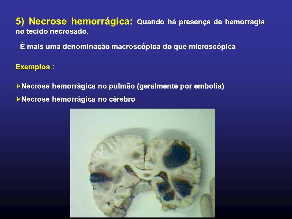 5) Necrose hemorrágica: Quando há presença de hemorragia no tecido necrosado. É mais uma denominação macroscópica do que microscópica Exemplos : Necro