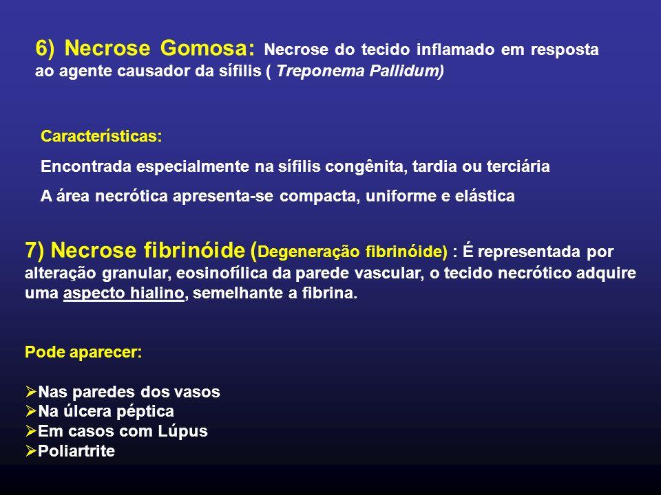 6) Necrose Gomosa: Necrose do tecido inflamado em resposta ao agente causador da sífilis ( Treponema Pallidum) Características: Encontrada especialmen
