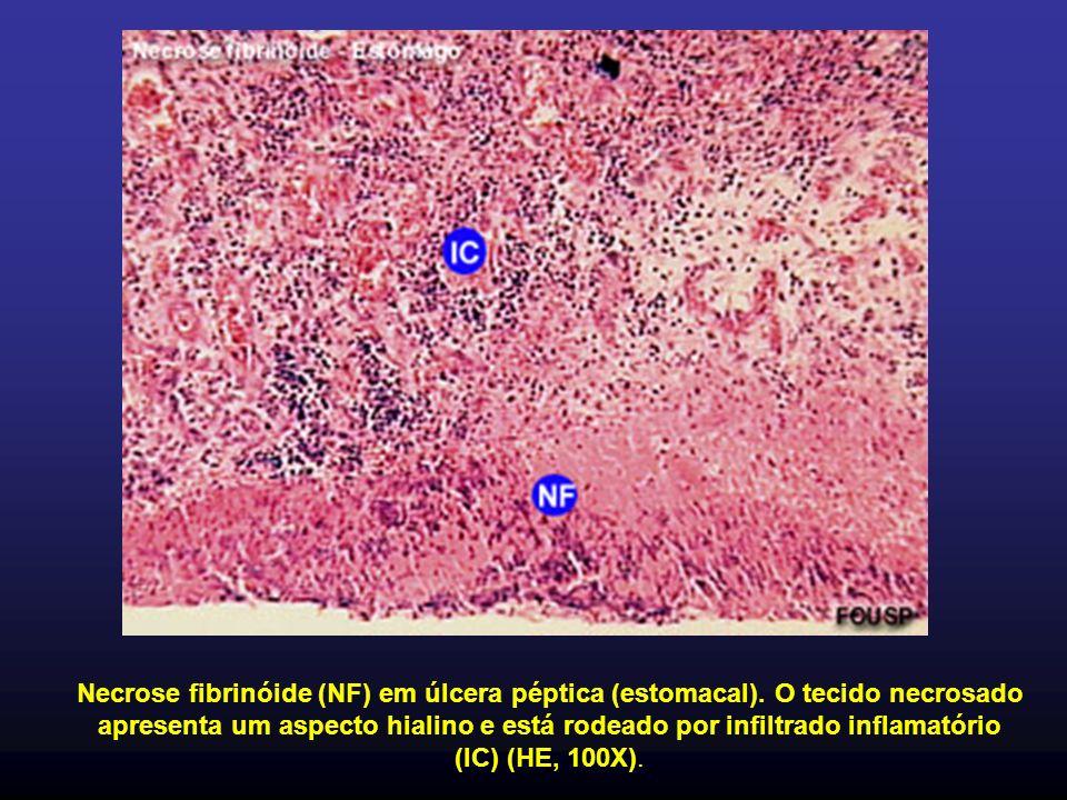 Necrose fibrinóide (NF) em úlcera péptica (estomacal). O tecido necrosado apresenta um aspecto hialino e está rodeado por infiltrado inflamatório (IC)
