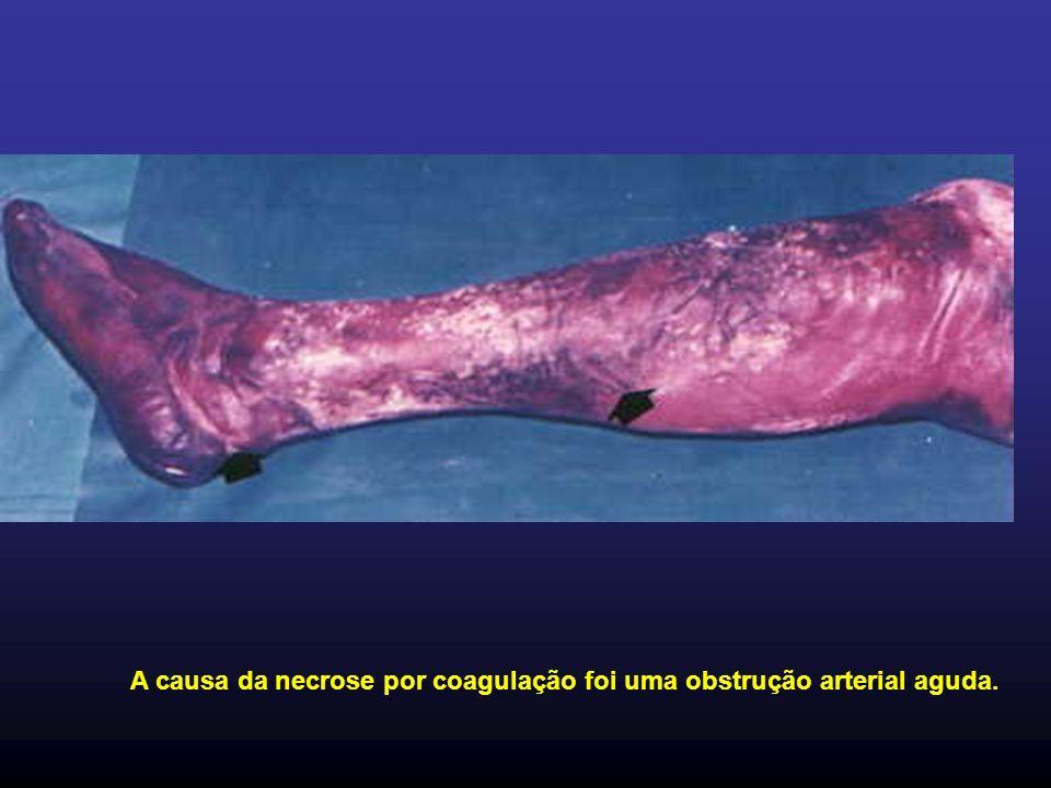 A causa da necrose por coagulação foi uma obstrução arterial aguda.