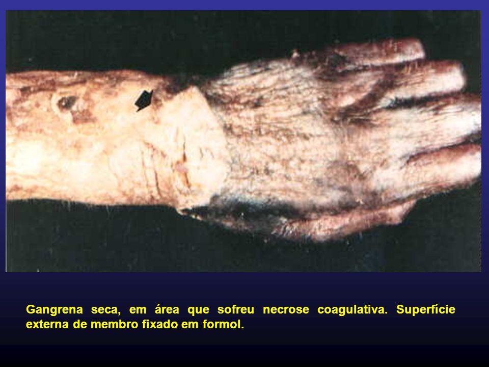 Gangrena seca, em área que sofreu necrose coagulativa. Superfície externa de membro fixado em formol.