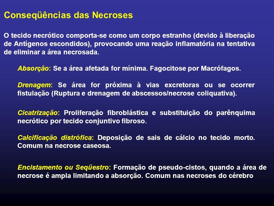 Conseqüências das Necroses O tecido necrótico comporta-se como um corpo estranho (devido à liberação de Antígenos escondidos), provocando uma reação inflamatória na tentativa de eliminar a área necrosada.