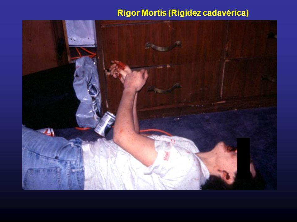 Rigor Mortis (Rigidez cadavérica)