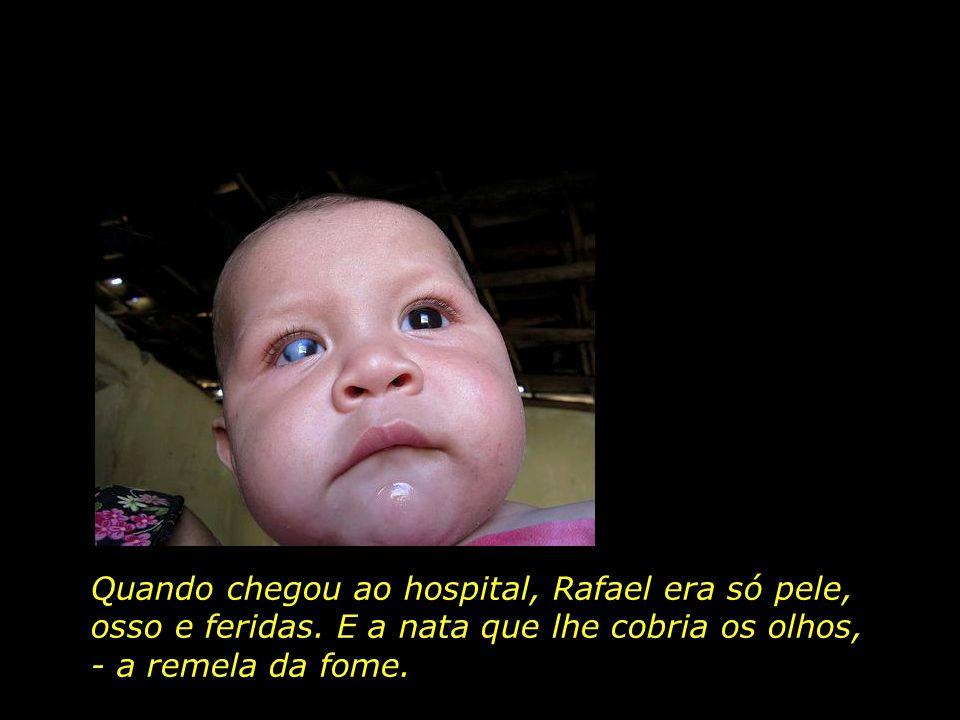 Rafael, 2 anos, morador de Ipubi, PE, perdeu a visão do olho direito devido a forte desnutrição.