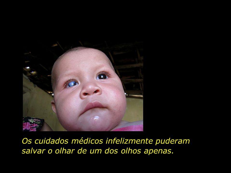 Quando chegou ao hospital, Rafael era só pele, osso e feridas. E a nata que lhe cobria os olhos, - a remela da fome.