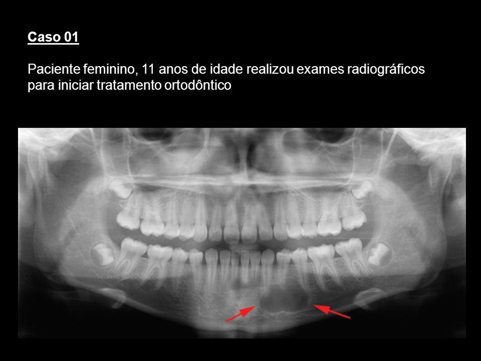 Caso 01 Paciente feminino, 11 anos de idade realizou exames radiográficos para iniciar tratamento ortodôntico