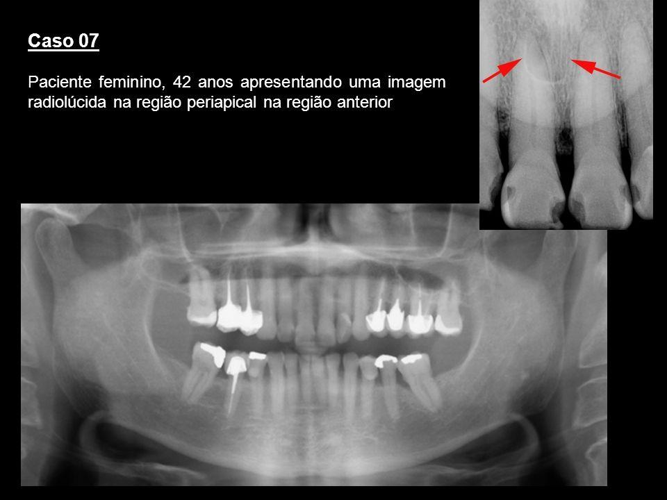 Caso 07 Paciente feminino, 42 anos apresentando uma imagem radiolúcida na região periapical na região anterior