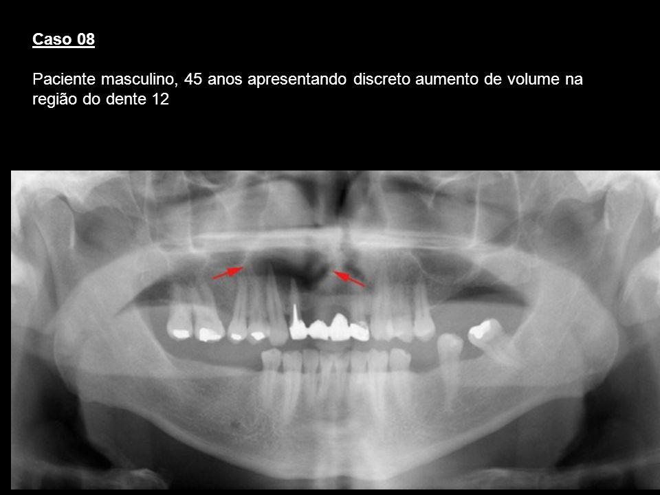 Caso 08 Paciente masculino, 45 anos apresentando discreto aumento de volume na região do dente 12
