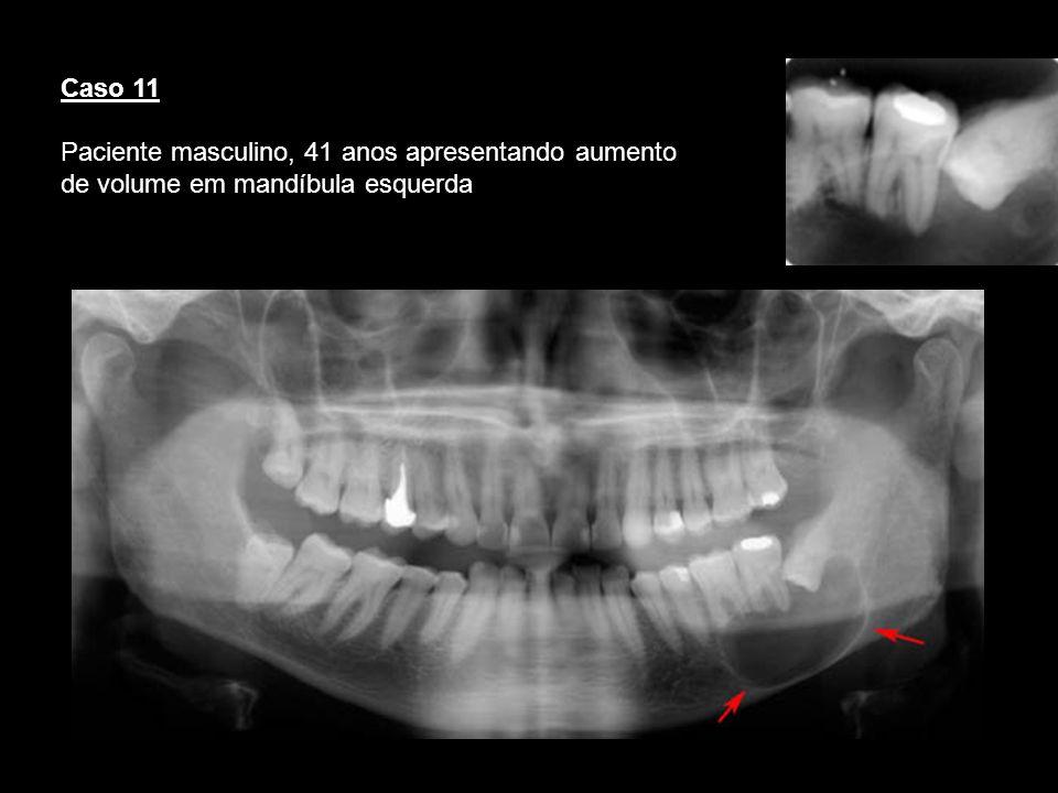 Caso 11 Paciente masculino, 41 anos apresentando aumento de volume em mandíbula esquerda