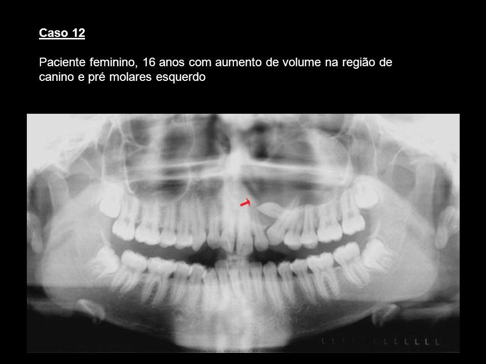 Caso 12 Paciente feminino, 16 anos com aumento de volume na região de canino e pré molares esquerdo