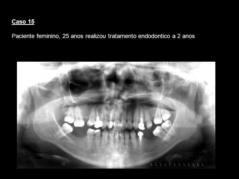 Caso 15 Paciente feminino, 25 anos realizou tratamento endodontico a 2 anos