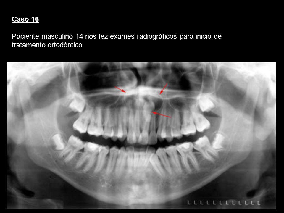 Caso 16 Paciente masculino 14 nos fez exames radiográficos para inicio de tratamento ortodôntico