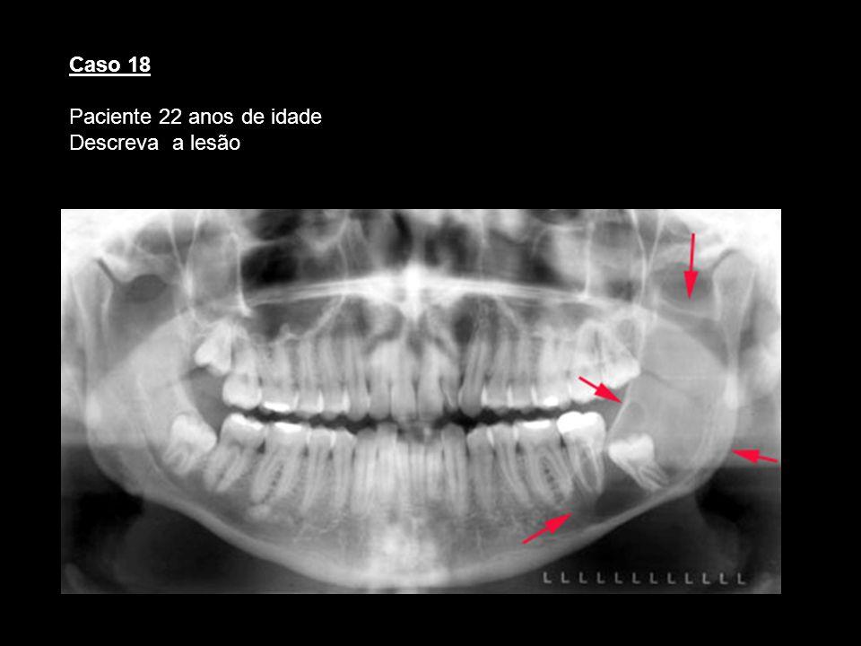 Caso 18 Paciente 22 anos de idade Descreva a lesão