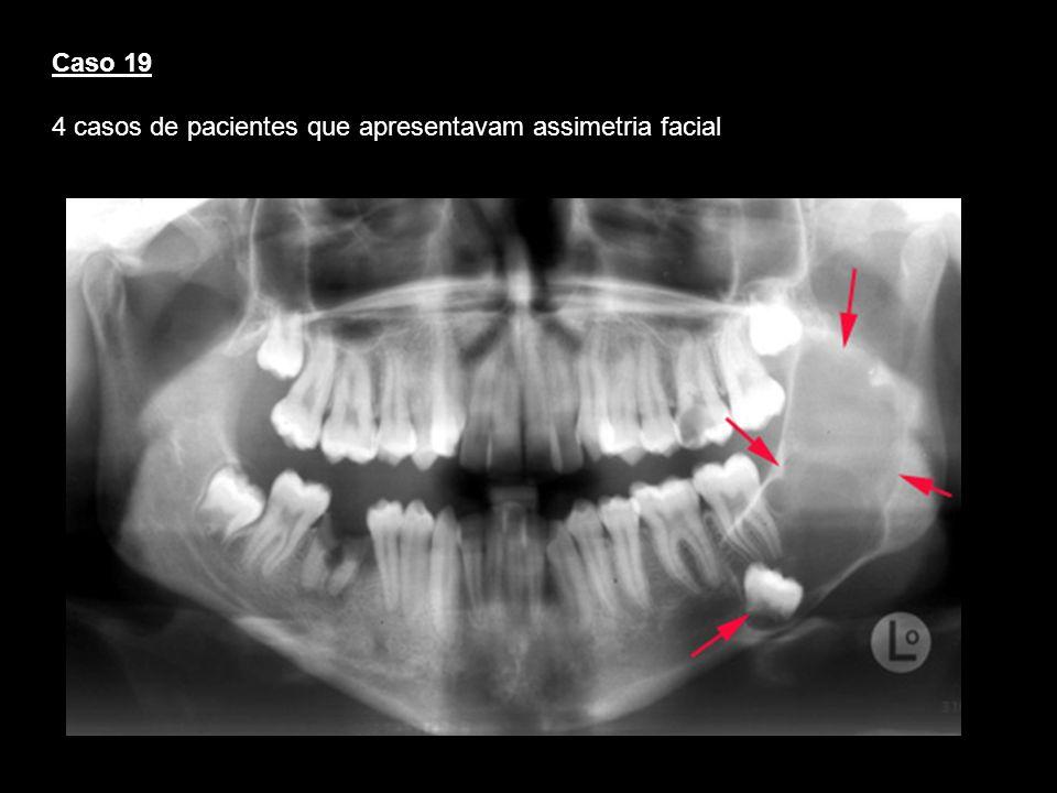 Caso 19 4 casos de pacientes que apresentavam assimetria facial
