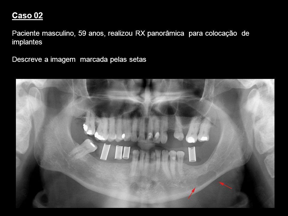 Caso 02 Paciente masculino, 59 anos, realizou RX panorâmica para colocação de implantes Descreve a imagem marcada pelas setas