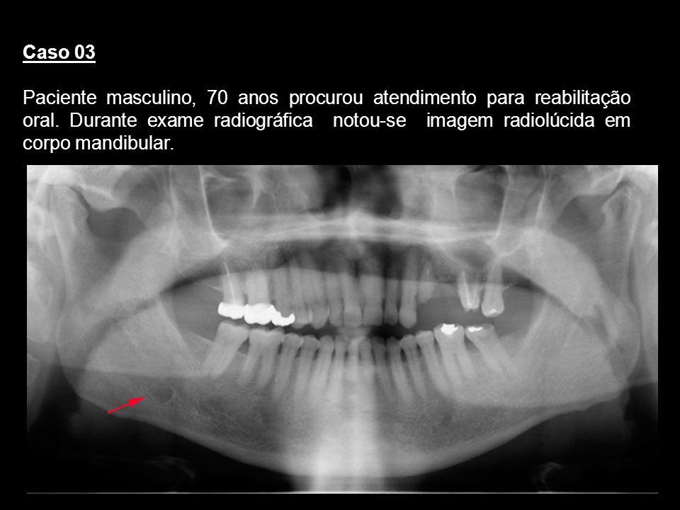 Caso 03 Paciente masculino, 70 anos procurou atendimento para reabilitação oral. Durante exame radiográfica notou-se imagem radiolúcida em corpo mandi