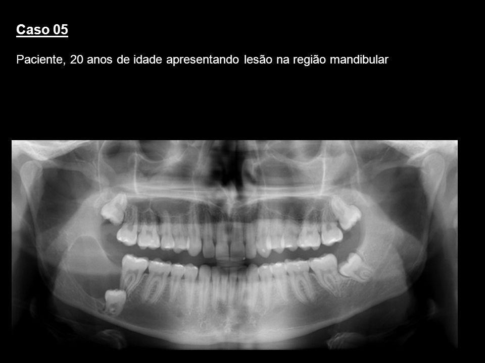 Caso 05 Paciente, 20 anos de idade apresentando lesão na região mandibular