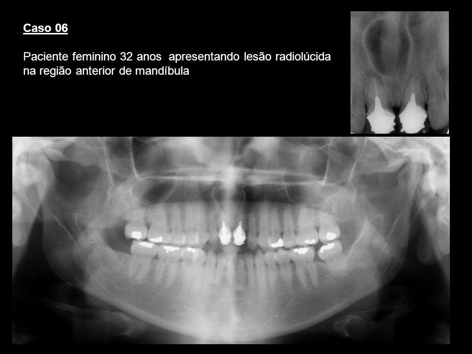 Caso 06 Paciente feminino 32 anos apresentando lesão radiolúcida na região anterior de mandíbula