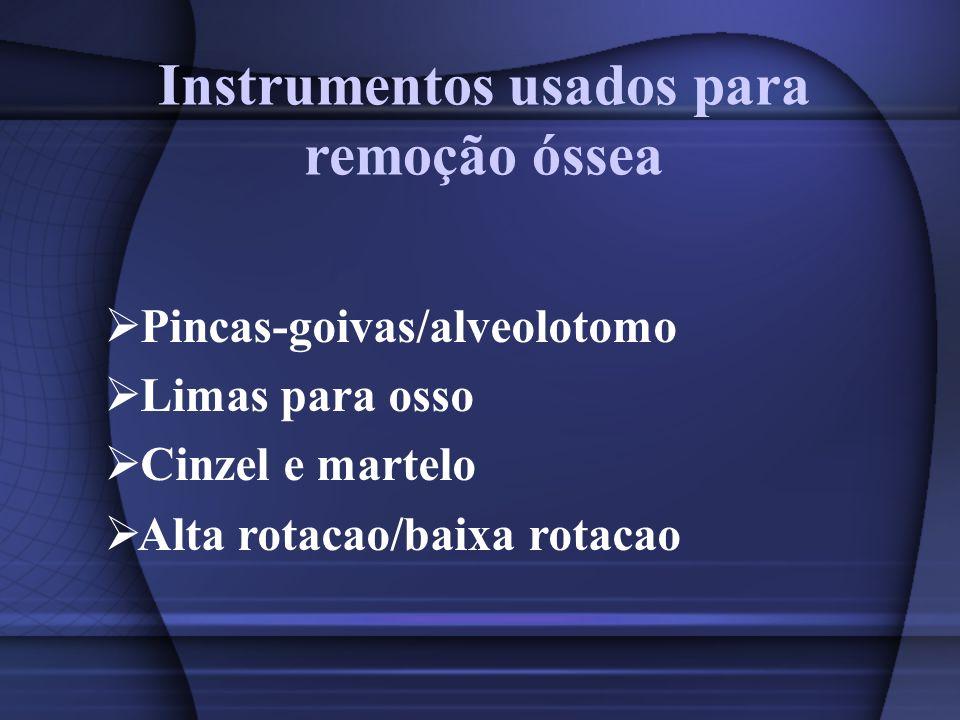 Instrumentos usados para remoção óssea Pincas-goivas/alveolotomo Limas para osso Cinzel e martelo Alta rotacao/baixa rotacao