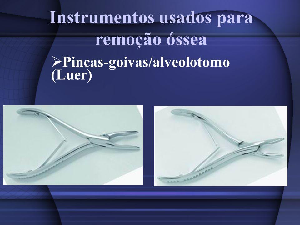 Instrumentos usados para remoção óssea Pincas-goivas/alveolotomo (Luer)