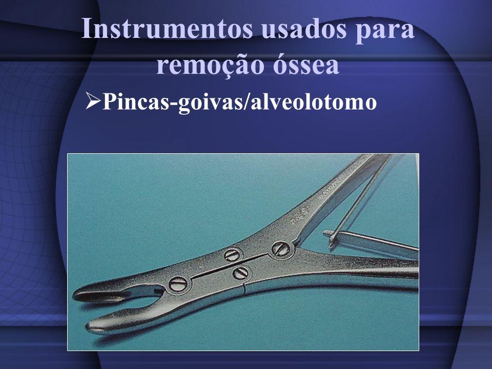 Instrumentos usados para remoção óssea Pincas-goivas/alveolotomo