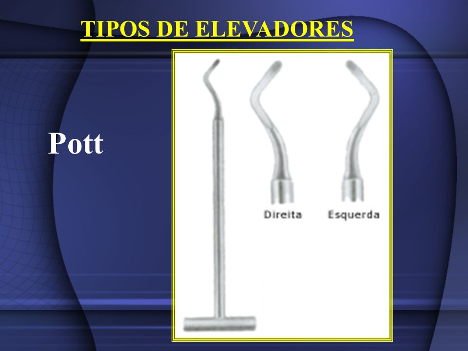 TIPOS DE ELEVADORES Pott