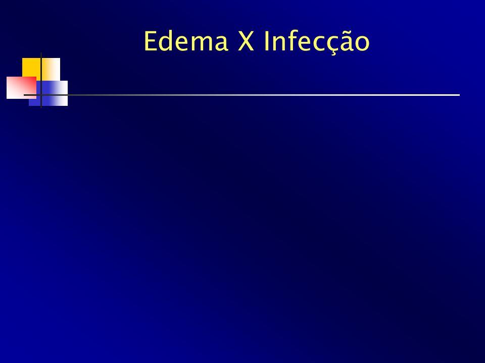Edema X Infecção