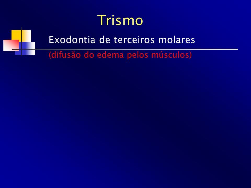 Trismo Exodontia de terceiros molares (difusão do edema pelos músculos)