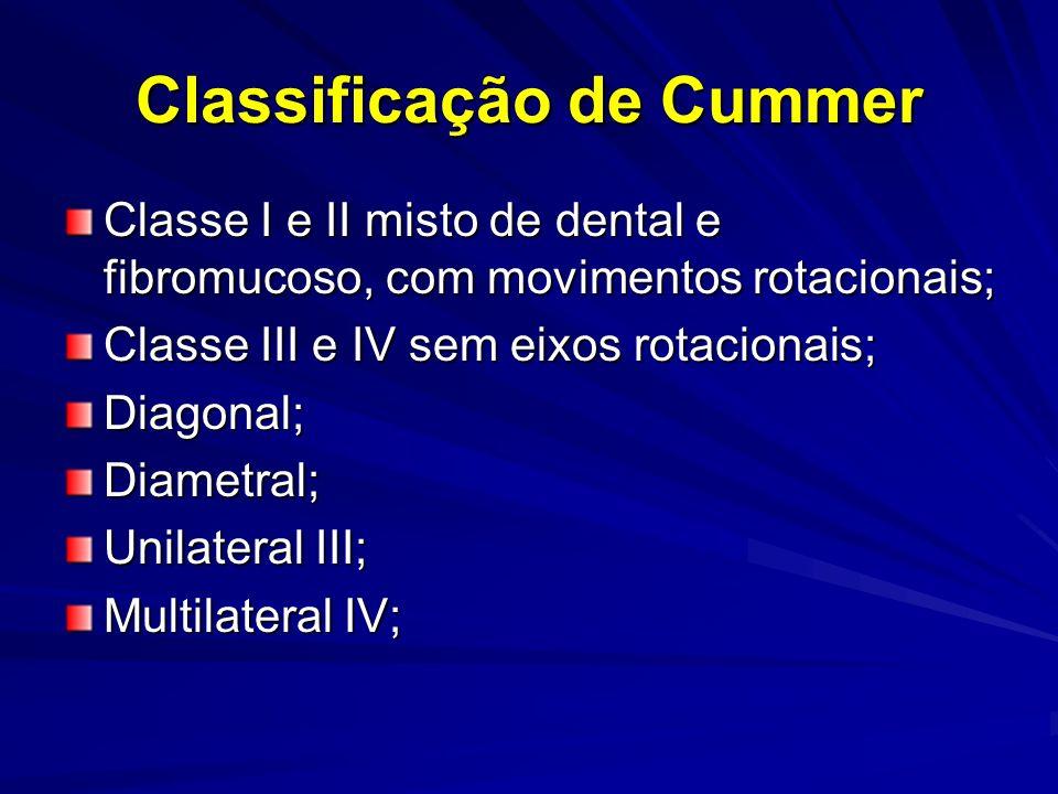 Classificação de Cummer Classe I e II misto de dental e fibromucoso, com movimentos rotacionais; Classe III e IV sem eixos rotacionais; Diagonal;Diame