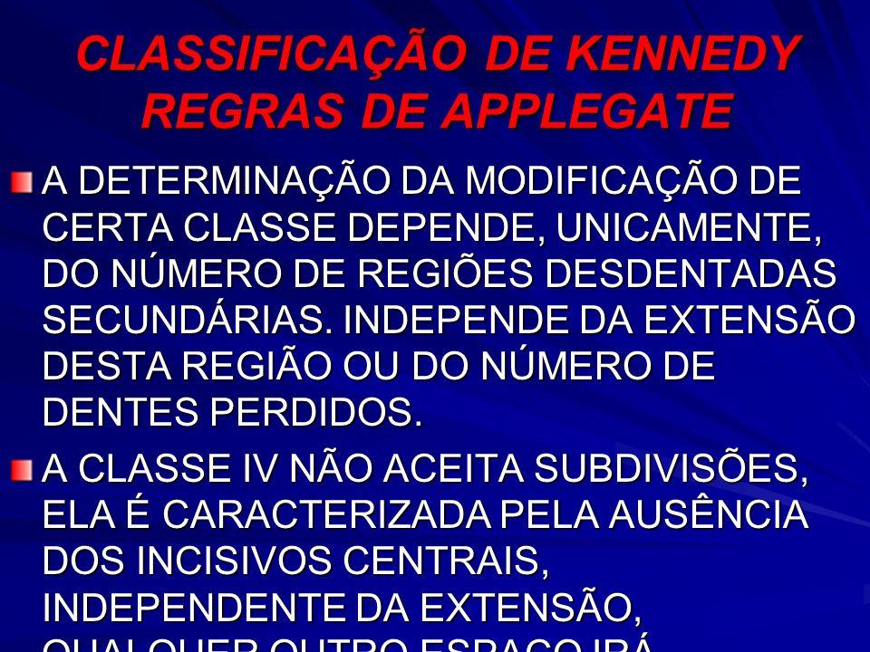 CLASSIFICAÇÃO DE KENNEDY REGRAS DE APPLEGATE A DETERMINAÇÃO DA MODIFICAÇÃO DE CERTA CLASSE DEPENDE, UNICAMENTE, DO NÚMERO DE REGIÕES DESDENTADAS SECUN